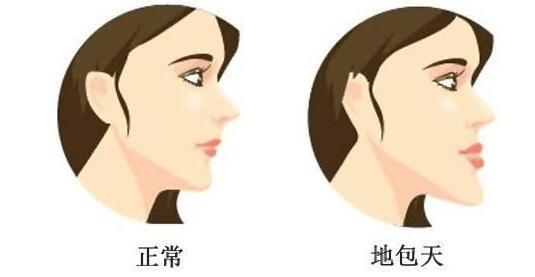 艾菲斯整形下颌角整形怎么样 打造气质小脸