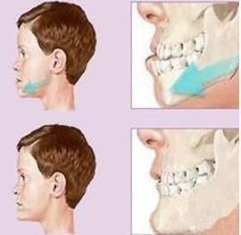 <font color=red>地包天矫正</font>手术费用多少 拯救牙齿的美观性