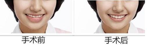 厚唇修薄手术过程 让唇形曲线更优美
