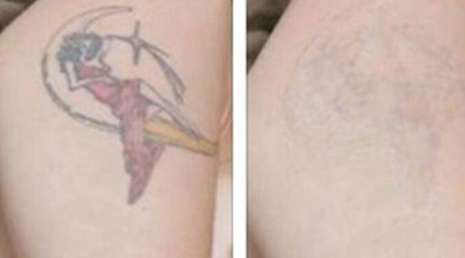 爱乐瑞整形激光去纹身优点 去除年轻时的骚动
