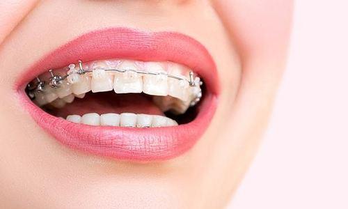 北京康贝佳牙齿矫正需要多久