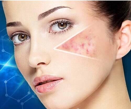 脸上的痘痘怎么才能去掉 激光祛痘好吗