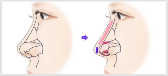 带你了解伊维兰隆鼻 伊维兰注射是否安全