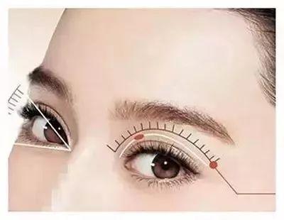 漂亮脸蛋少不了一双大眼睛 开眼角术让你秒变大眼