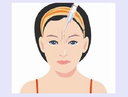 怎么去眉间纹 消除眉间纹的方法?#24515;?#20123;
