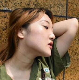 下颌角整形手术的效果怎么样 优势有哪些呢