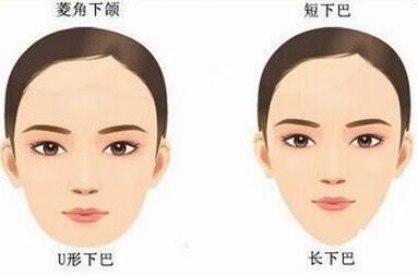 下颌角整形的切口有几种 打造精美的瓜子脸