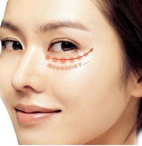 铂生医疗美容激光去除眼袋的优势 小切口恢复快