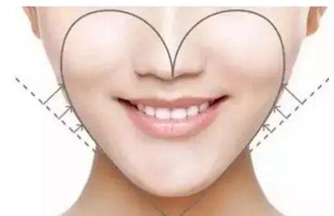 自体脂肪填充苹果肌 让你的笑容更甜美