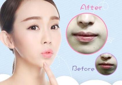 厚唇变薄手术恢复时间 打造性感红唇
