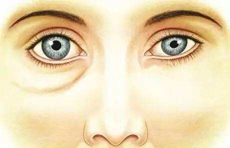 激光去眼袋怎么样 有副作用吗