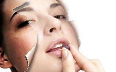 做彩光祛斑美容后怎么保养皮肤