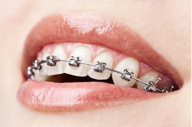 上海牙齿矫正方法及价格