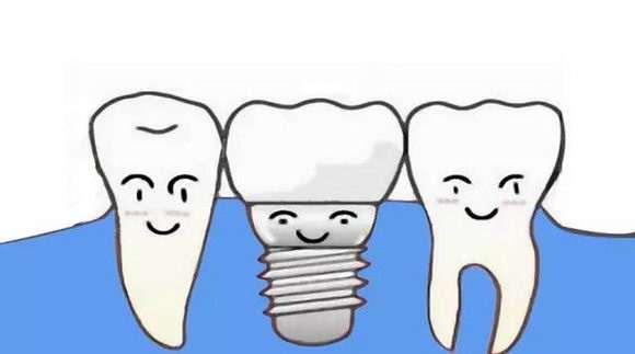 杭州美奥口腔医院种植牙多少钱一颗