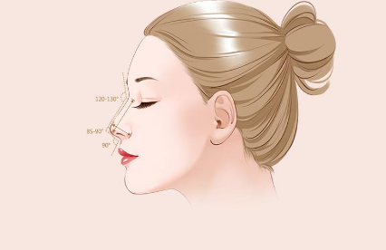 青海米澜之星假体隆鼻 你也可以拥有好看的鼻子