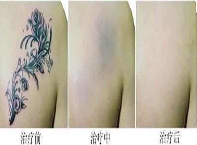 自贡尚美激光洗纹身效果如何 疼不疼