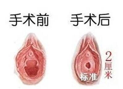 西宁仁爱妇科医院做处女膜修复后会出血吗