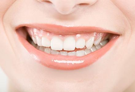 牙齿矫正需要多久 期间需要注意什么