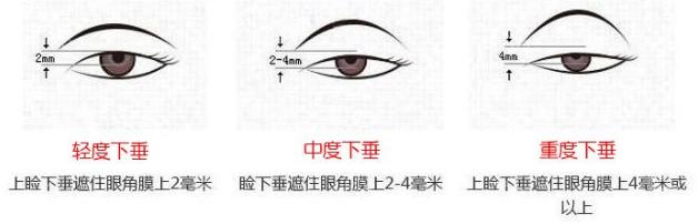 荆州名韩上眼脸下垂矫正 拒绝眯眯眼