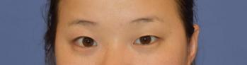 洛阳谢景良美容整形医院双眼皮切割 提升我的颜值