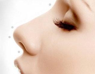 洛阳维多利亚耳软骨垫鼻尖 让你的鼻子更漂亮