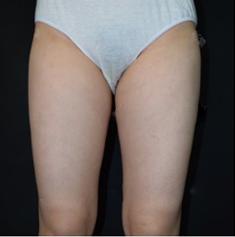 长春铭韩医疗整形吸脂瘦腿 效果真实出乎想象