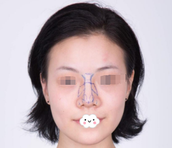 沈阳艾咪美容整形医院自体软骨隆鼻 我也拥有高挺鼻梁了
