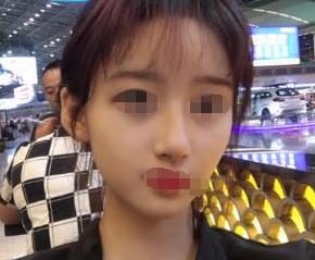 长肉之后,我也去天津南开怡丽亚韩做了自体脂肪全脸填充
