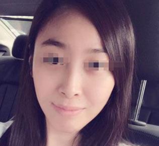济南军区总医院医疗整形美容科 祛除眼袋终于变年轻了