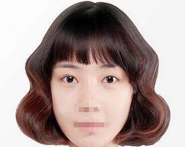 湛江悦莱美医疗双眼皮手术 为我打造迷人双眼