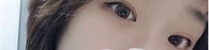 自从在珠海仁爱做了埋线双眼皮 我也拥有了迷人大眼