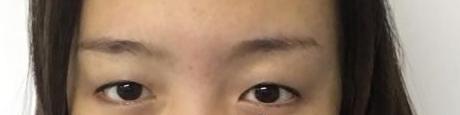 去德阳金荣做了全切双眼皮+开眼角综合手术 我也可以很美