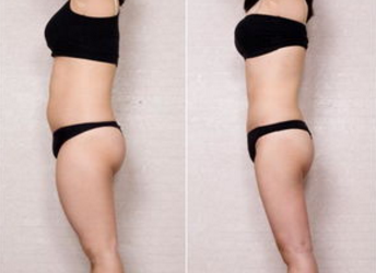 桂林秀美医疗腰腹吸脂 你也可以拥有小蛮腰