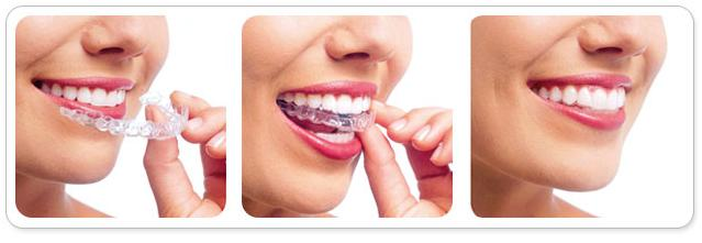 牙齿畸形矫正 让你拥有灿烂笑容