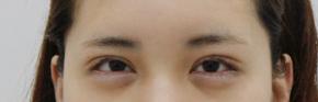 衡阳华美医疗内切法去眼袋 让我拥有迷人大眼