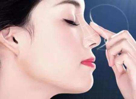 合肥丽人中韩整形硅胶隆鼻多少钱