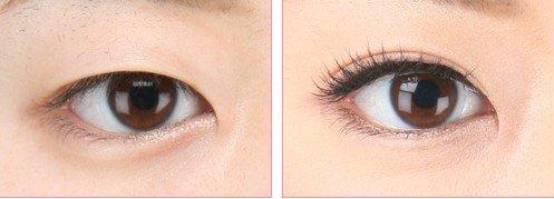 双眼皮手术哪些常见 你了解吗
