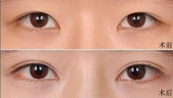 南昌爱美双眼皮切割术 改善你的眼部问题