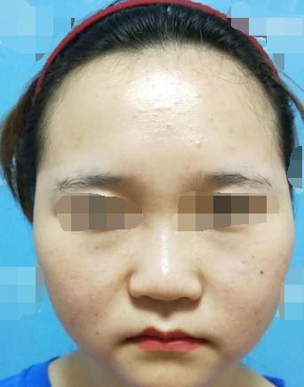 自从在泉州黄氏医疗做了面部吸脂 感觉整个人变美不止一点