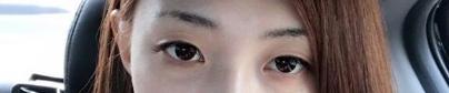 郑州集美医疗切开法双眼皮 效果自然我很满意!