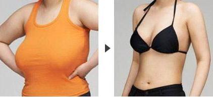 深圳广济乳房缩小术 价格多少效果能维持多久