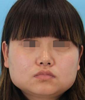 在荆州美傲医疗做了面部吸脂 好看的小v脸不再是我的梦了