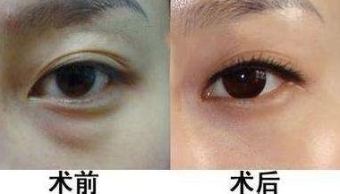 哈尔滨科美医疗美容整形医院吸脂去眼袋 年轻不会很麻烦