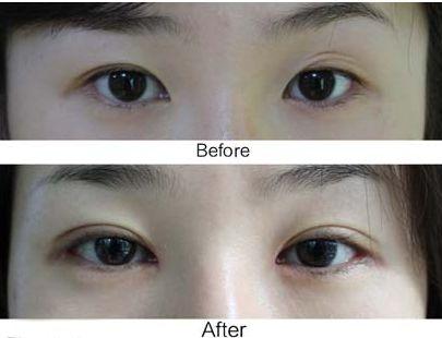 遵义科大医疗整形双眼皮修复多少钱 方法有哪些