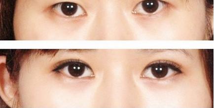双眼皮修复最佳时间是何时 南充五星医疗给你答案