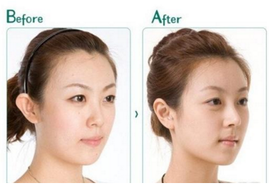 施尔美整容医院好不好 假体隆鼻方法有哪些