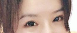 在上海洁铭医疗整形医院做双眼皮修复 效果自然