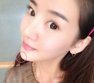 怀化韩美整形美容隆下巴的方法有哪些