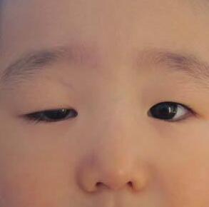 眼脸下垂整形的案例 恢复你青春容颜