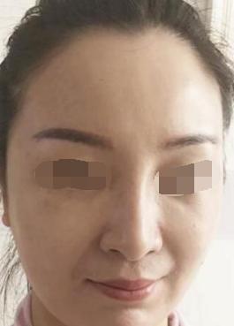 长春嘉和外科医院医疗整形科面部吸脂 皮肤细腻紧致